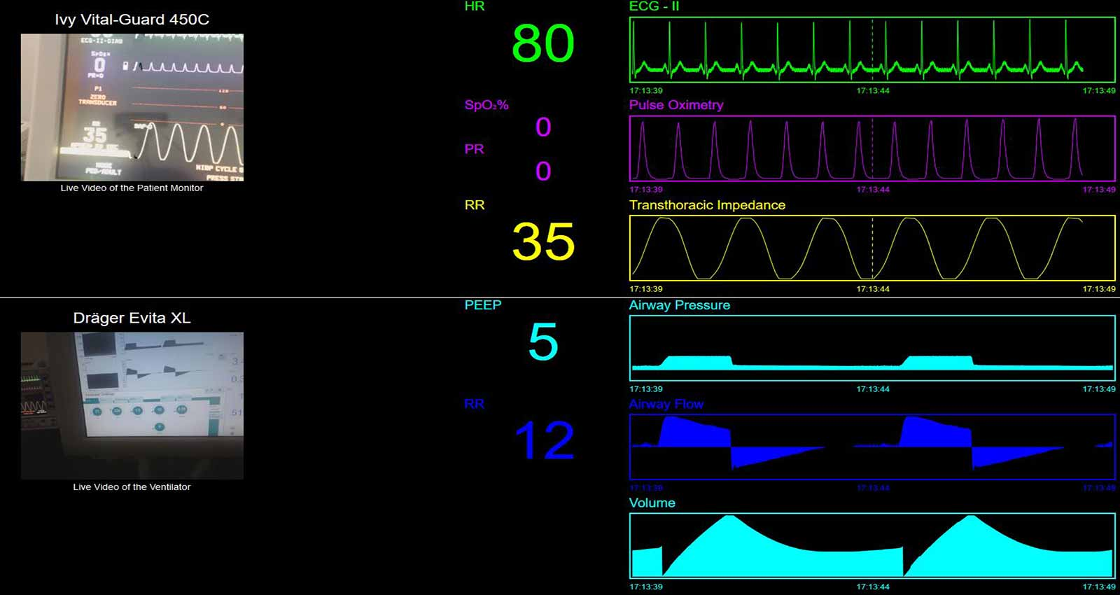 OpenICE – Medical device interoperability platform – Open