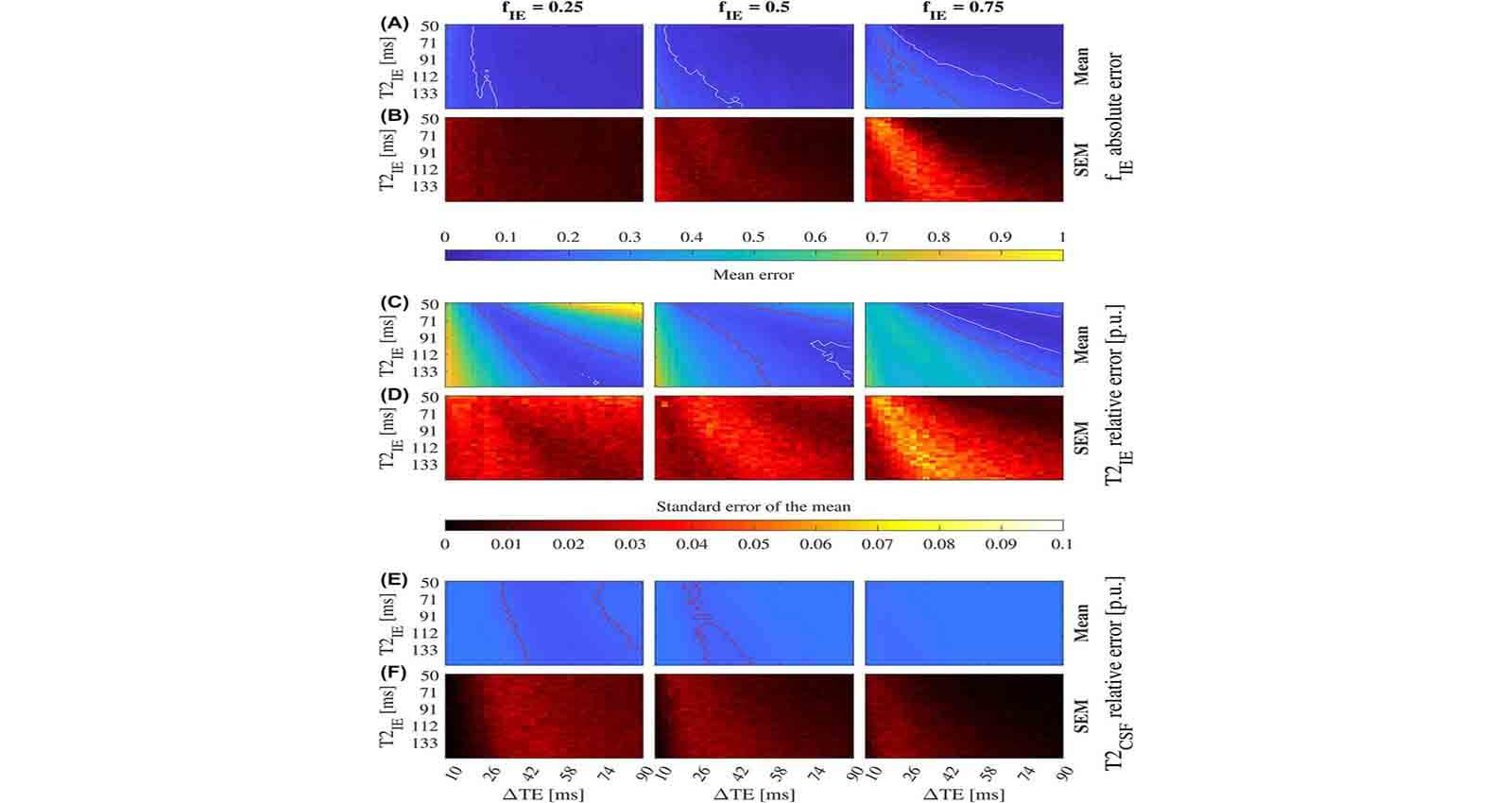 Blind Source Separation of Diffusion MRI – Open Source Imaging
