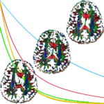 Open_source_magnetic_resonance_imaging-projectUpload-BlindSourceSeparation-Featured