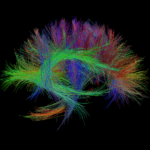 open_source_magnetic_resonance_imaging_projects_iman_featured