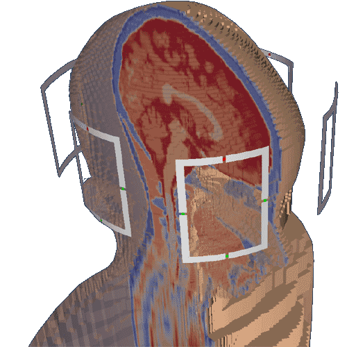open_source_magnetic_resonance_imaging_projects_openems_teaser