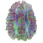 open_source_magnetic_resonance_imaging_projects_powerGrid_teaser2